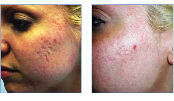 Acne Scars Treatment With Homemade Herbal Cream